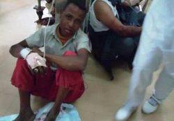 سند جنایت آل سعود در یمن + تصاویر(۱۸+)