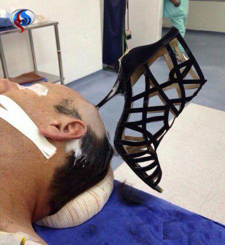 پاشنه کفش زن در سر شوهر جا ماند! +عکس
