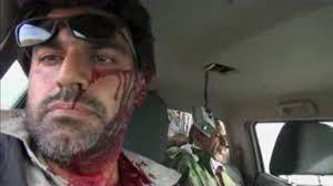 دانلود/لحظه مجروحیت مستندساز ایرانی توسط داعش
