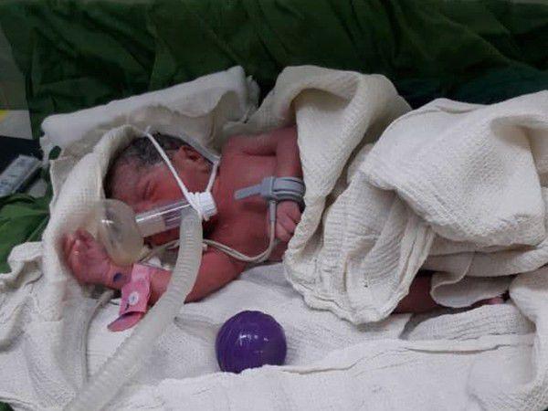 تولد اولین سه قلوی گلستانی به روش لقاح خارج رحمی