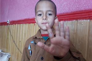 تنبیه بیرحمانه نیما اکرمی دانشآموز کلاس اول ، با خط کش داغ توسط معلم+ عکس