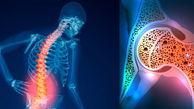 افراد بالای ۵۰ سال بیماری پوکی استخوان را جدی بگیرند