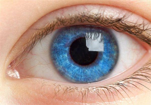 انواع علائم بیماری های چشمی