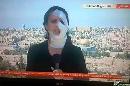 چهره عجیب خبرنگار در پخش زنده اخبار! +عکس