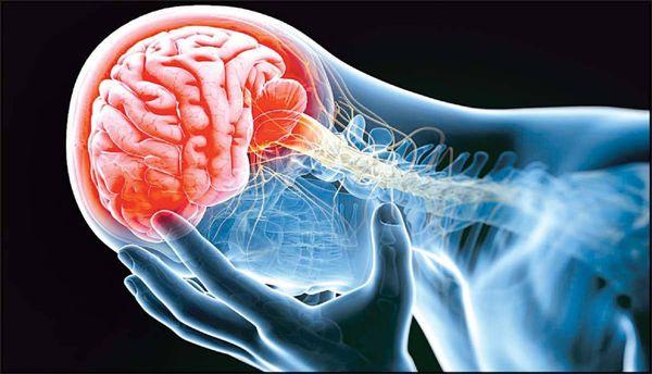 توصیه های طلایی برای کاهش خطر سکته مغزی