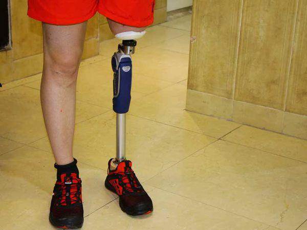 فیلم/ صحبتهای دردناک یک مادر درباره تهیه پای مصنوعی فرزندش!